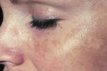 Adeus para as manchas indesejáveis na pele, depois de fazer essa receita caseira, você vai se surpreender mesmo com o resultados!