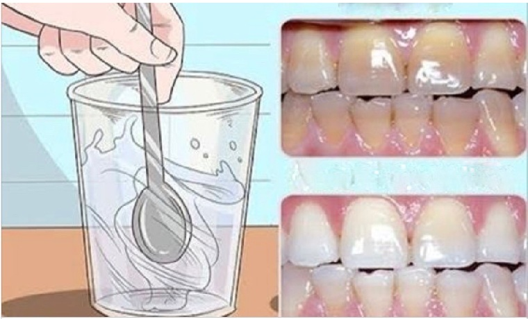 Como Deixar Os Dentes Brancos E Resistentes Em 2018 Crie Net